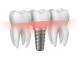 Prothèse dentaire vectorielle 1