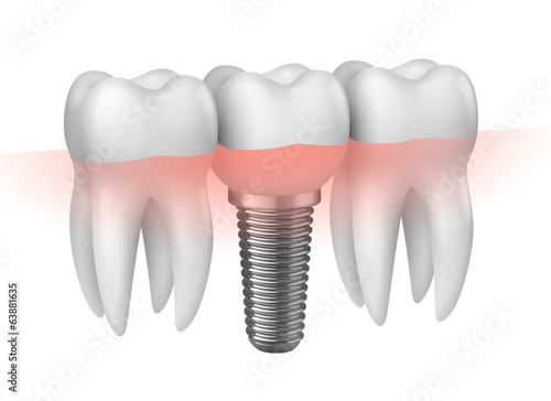 Prothèse dentaire vectorielle 1 - 63881635