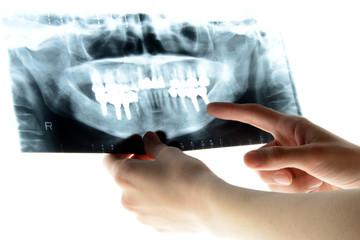 レントゲンを見る歯科医師