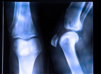 X-Ray image if the human knee