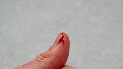 The cut thumb on the hand, and blood