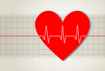 EKG-Kurve