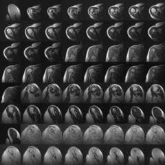 MRI of humerus