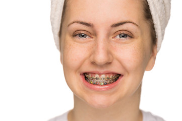 Cheerful girl with braces isolated