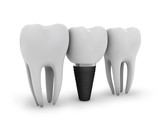 Fototapety tooth implant