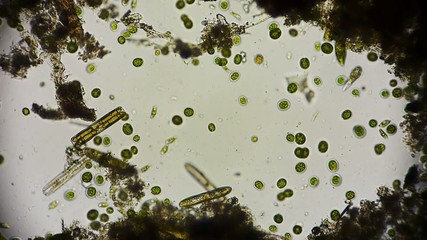 Mikroorganismen unter dem Mikroskop in Full HD