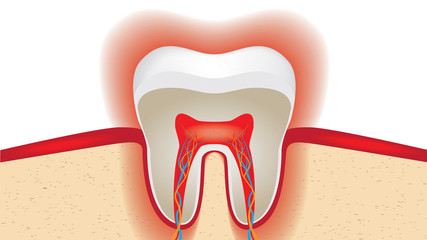 pulsation of sensitive tooth enamel