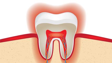pulsation of sensitive tooth enamel