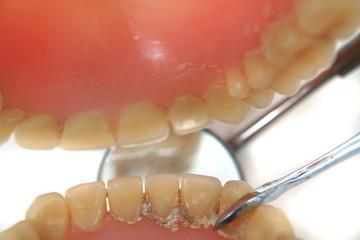 dentist problem