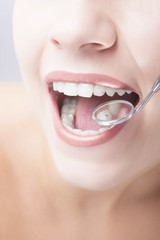 Healthy Woman Mouth Closeup With Dentist Mirror