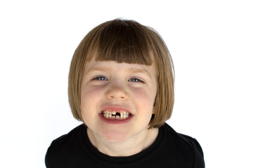 A smiling girl missing teeth