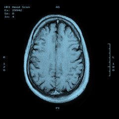 MRI Head Scan Top view