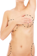Body and plastic surgery markers