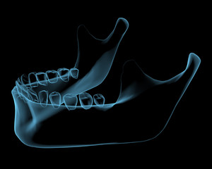 Human jaw x-ray blue transparent isolated on black