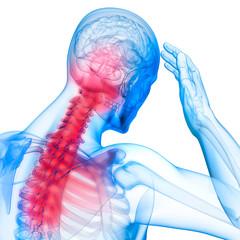 Akute Nackenschmerzen