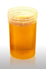 Yellow Urine  Medical analysis