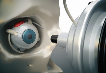 laser eye surgery or lasik medical operation concept