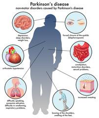 effetti collaterali del Morbo di Parkinson