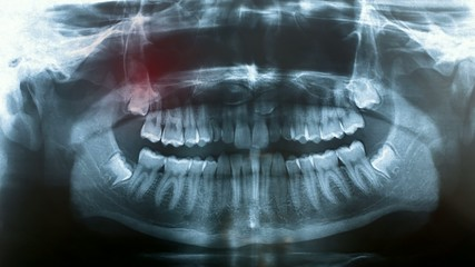 toothache symptom