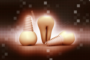 Tooth human implant on abstract background .