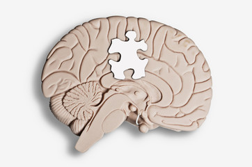 Puzzle piece placed on a brain model