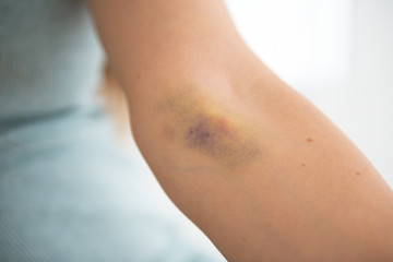 Closeup on bruise hand of drug addict young woman