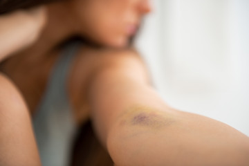 Closeup on drug addict young woman with bruise on hand