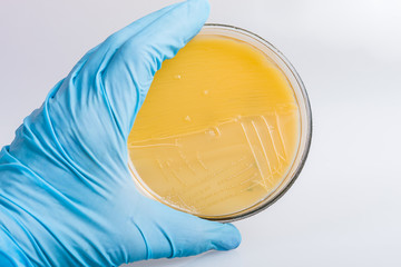 Hand in glove holding the petri dish with bacteria