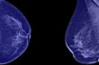 ������, ������: Lateral mammogram of female breast