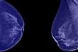 Постер, плакат: Lateral mammogram of female breast
