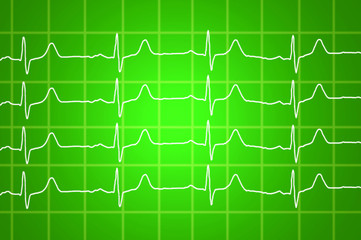 heart beats electrocardiogram over green background