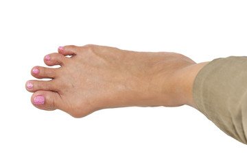 background of  foot deformity called bunion deformity or hallux