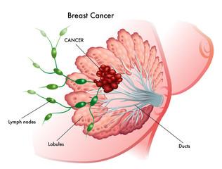 cancro del seno