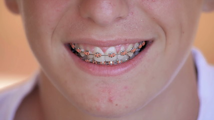 Teenager smiling and showing his dental appliance - close up
