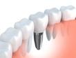 Leinwandbild Motiv Dental implant