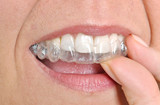 Invisible braces - 65077208
