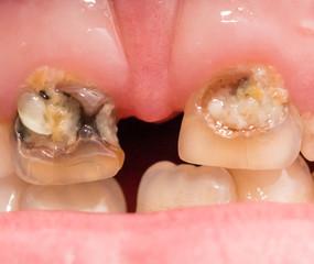 rotten teeth. macro