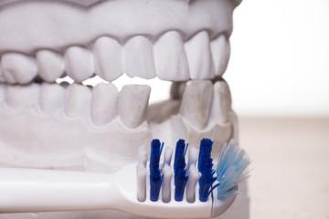 Zahnbürste und Model von einem menschlichen Gebiss