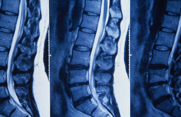 X-ray der menschlichen Wirbelsäule, Röntgenaufnahme