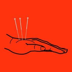 Homöopathie - Akupunktur