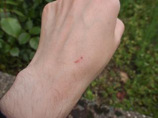 Hand scar