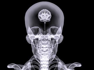 X-ray small brain #1