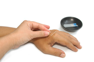 Hand applying acupuncture needle, Alternative medical