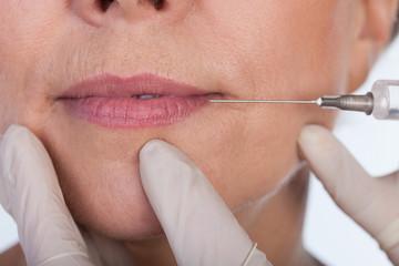 Lips correction using botox