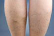 Varicose veins - 65581080