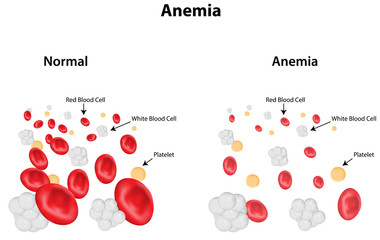 Anemia Labeled Diagram
