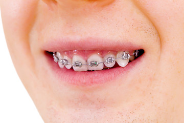 Teeth with braces.