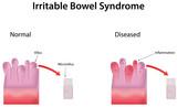 Inflammatory Bowel Disease poster