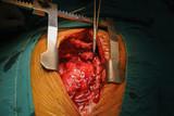 cardiac tumor poster