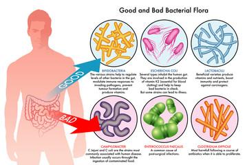 buona e cattiva flora batterica intestinale